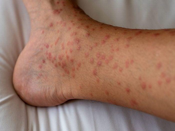 Symptômes de l'urticaire papuleuse.