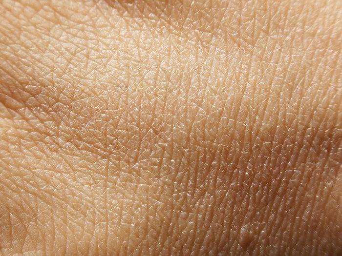Syndrome de Schnitzler: la peau est une fenêtre sur l'intérieur du corps.