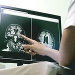Récupérer d'un AVC grâce à la stimulation nerveuse