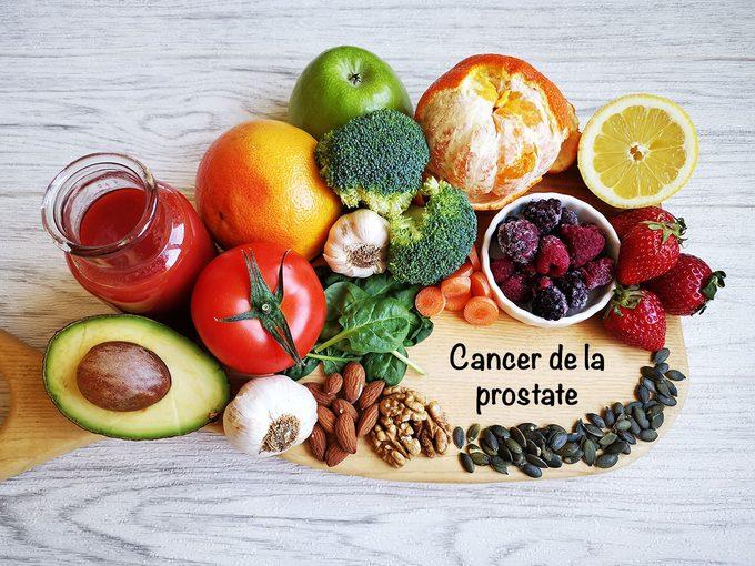 Ralentir le cancer de la prostate par l'alimentation.