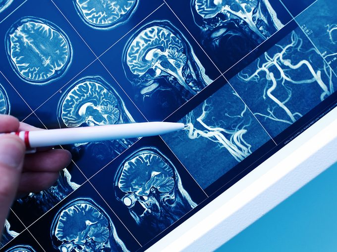 L'effet du prédiabète sur le cerveau.