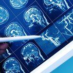 L'effet néfaste du prédiabète sur le cerveau
